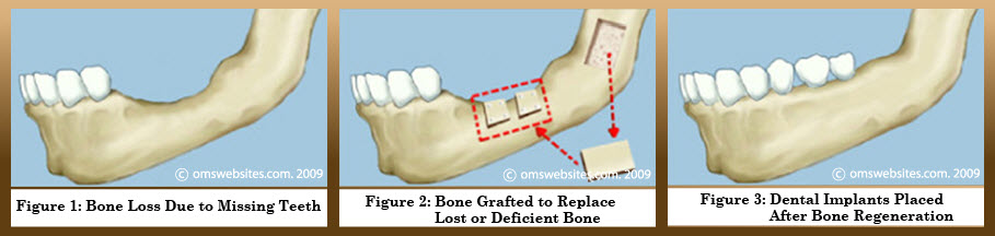 Bone-Grafting-11