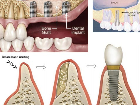 According to prices submitted by Dental Implant Cost Guide readers the cost of a single tooth implant ranges from 1000 to 3000 in addition to 500 to 3000 for