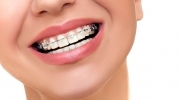 4 Things To Know Before You Get Braces