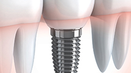 3 Dental Implant Options At Smile Store Cork & How They Work