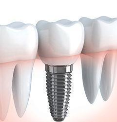tmt-Dental-Implants