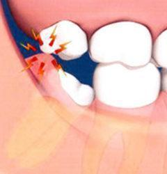 tmt-Extractions-and-Wisdom-Teeth-Removal