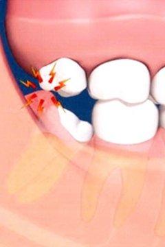 how to clean wisdom teeth