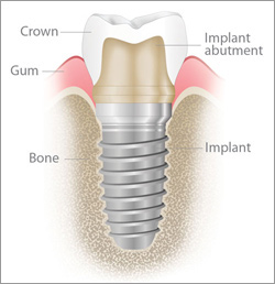 implant-illustration What exactly is a dental implant and who needs it?