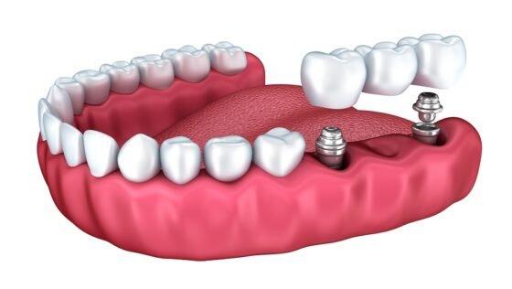 7 Reasons Why Implants Fail