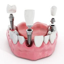 Proper Cleaning & Maintenance For Dental Implants