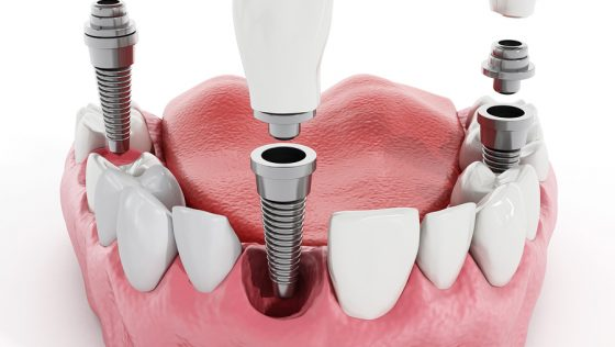 The Importance Of Proper Cleaning & Maintenance For Dental Implants