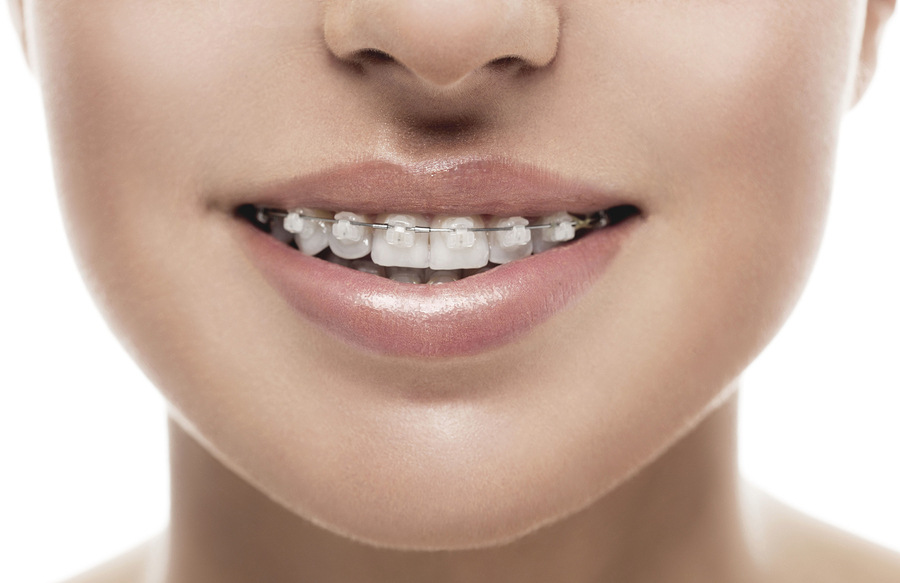 Braces orthodontics cork