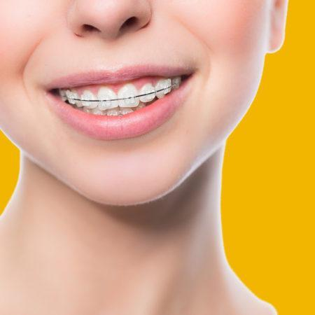 Top-5-Most-Common-Orthodontic-Problems