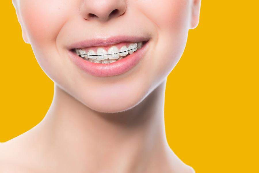 Top 5 Most Common Orthodontic Problems