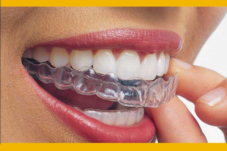 invisalign-wireless-braces