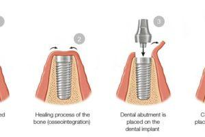 Getting Your Smile Back With Dental Implants