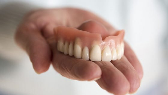 6 Major Reasons People Shouldn't Settle For Traditional Dentures