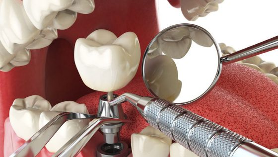 7 Amazing Truths About Dental Implants