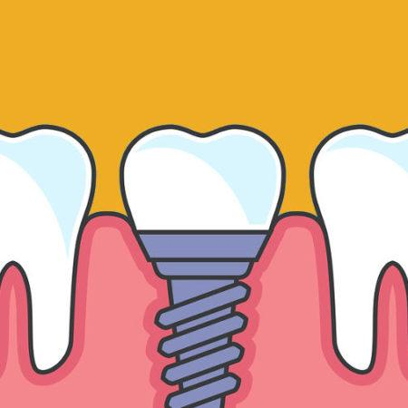 Tooth Loss After An Accident