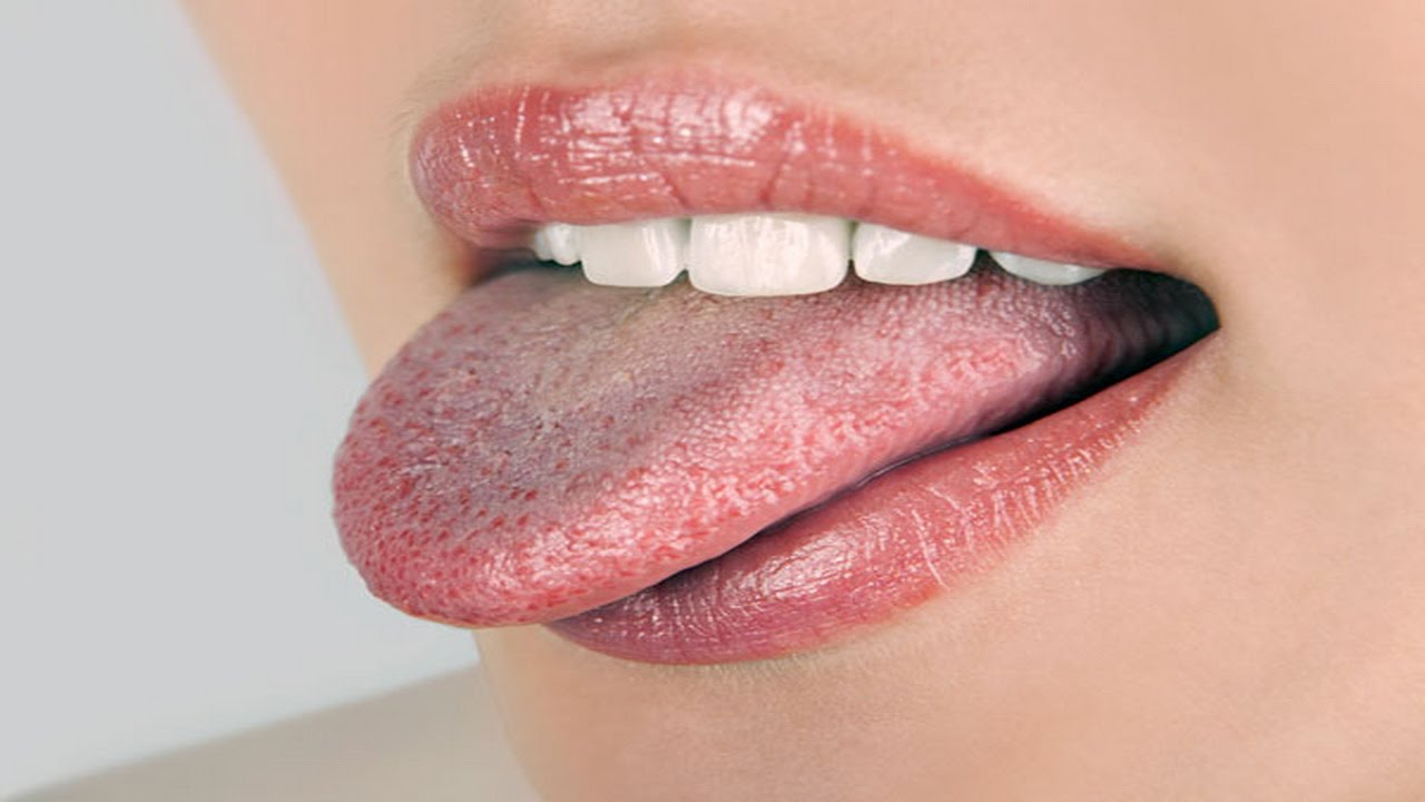 Bacteria living on your Tongue: How to Get Rid!